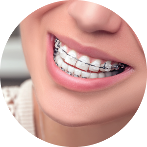 Types Braces Metal Braces Clear Braces Invisalign Bothell Wa